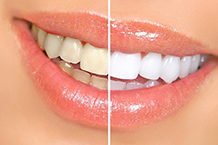 cosmetic dentistry teeth whitening page